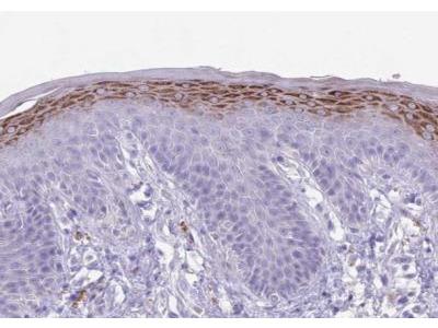 CLEC-2A Antibody