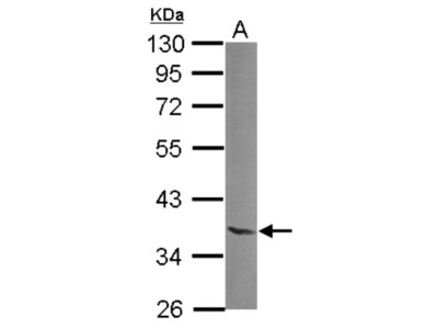 Rabbit Polyclonal NTAN1 Antibody