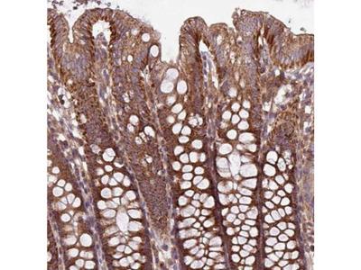 PLEKHD1 Antibody