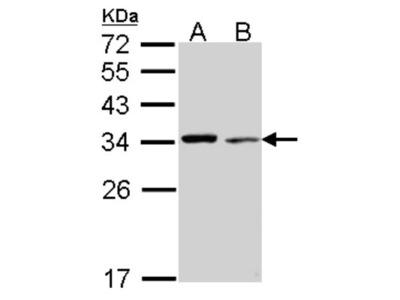 Rabbit Polyclonal tropomyosin-4 Antibody