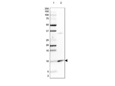 PET117 Antibody