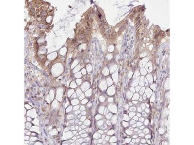 CCL1/I-309/TCA-3 Antibody