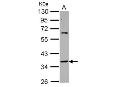 Rabbit Polyclonal SNAP45 Antibody