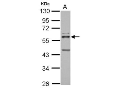 ETS2 Antibody