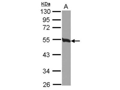 Rabbit Polyclonal Tubulin Beta 2C Antibody