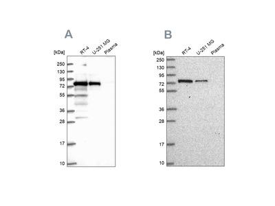 Anti-GNL1 Antibody