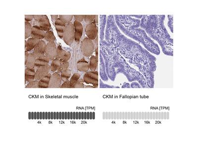 Anti-CKM Antibody