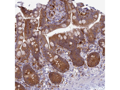 Anti-UBE2G1 Antibody