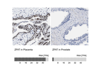 Anti-ZFAT Antibody