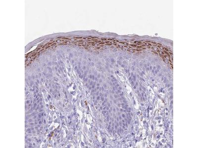 Anti-CLEC2A Antibody