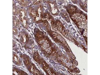 Anti-MCRIP1 Antibody