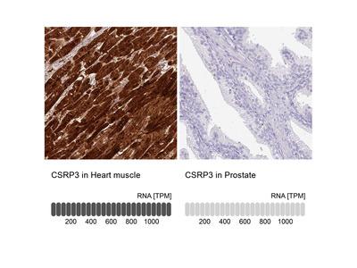 Anti-CSRP3 Antibody
