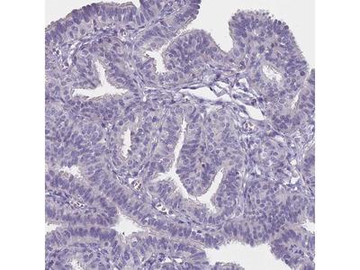 Anti-SLC35E4 Antibody