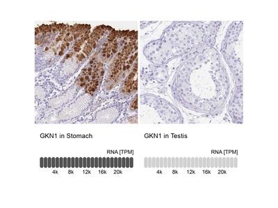 Anti-GKN1 Antibody