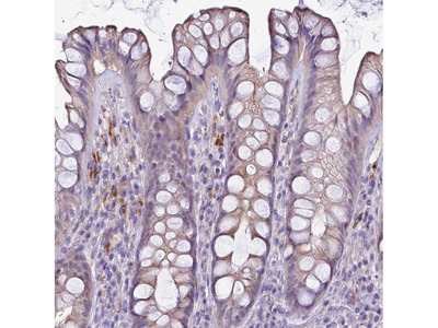 Anti-NAT1 Antibody