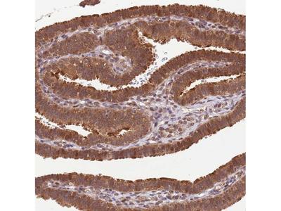 Anti-LRRC43 Antibody