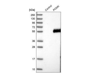 Anti-POMK Antibody
