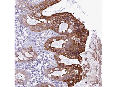 Anti-QSOX1 Antibody