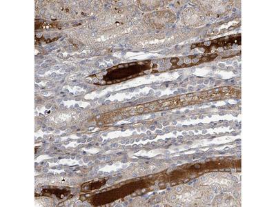 Anti-GRM8 Antibody