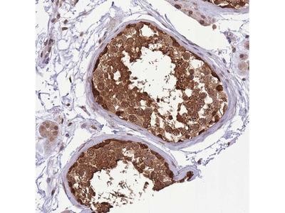 Anti-CDIP1 Antibody