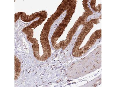 Anti-TRIM32 Antibody