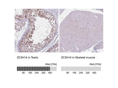 Anti-ZC3H14 Antibody