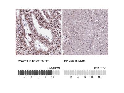 Anti-PRDM5 Antibody