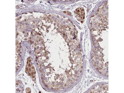 Anti-ZMYM4 Antibody