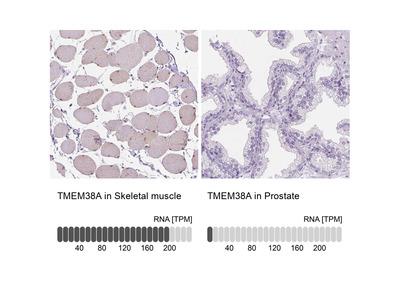 Anti-TMEM38A Antibody