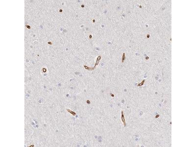 Anti-KIAA2022 Antibody