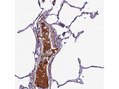 Anti-CFHR1 Antibody
