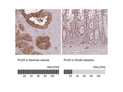 Anti-PLS3 Antibody