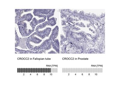 Anti-CROCC2 Antibody