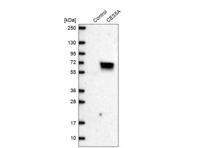 Anti-CES5A Antibody