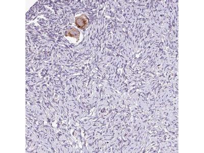 Anti-TTLL3 Antibody