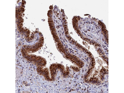 Anti-HUNK Antibody