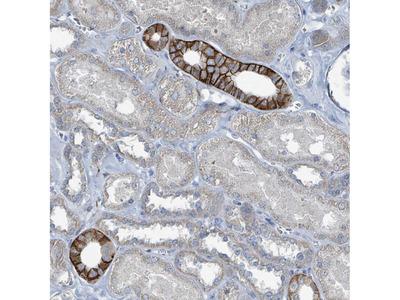 Anti-RASA4 Antibody