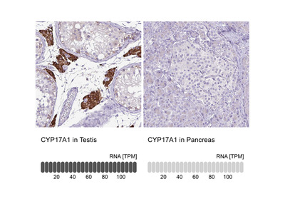 Anti-CYP17A1 Antibody