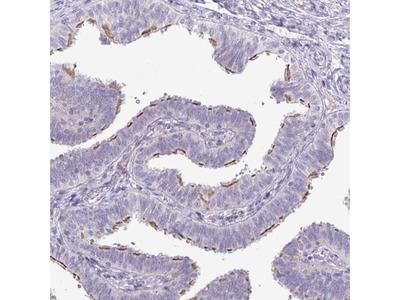 Anti-PNLDC1 Antibody