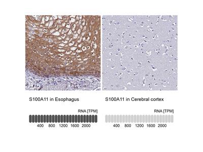 Anti-S100A11 Antibody