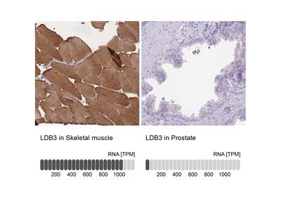 Anti-LDB3 Antibody