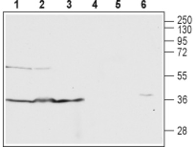 Anti-Human C5aR1 (extracellular) Antibody