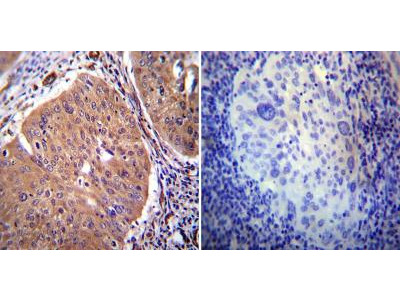 PMCA2 Antibody