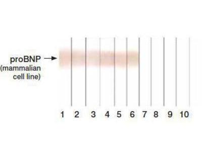 BNP Antibody (11D1)
