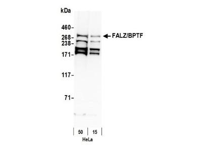 Rabbit Polyclonal BPTF / FALZ Antibody
