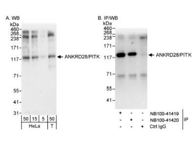 ANKRD28 Antibody