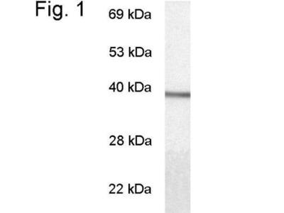 Transducin alpha Antibody