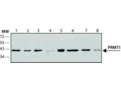 PRMT1 Antibody (PRMT1-171)