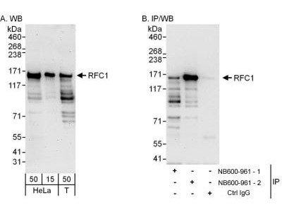 Rabbit Polyclonal RFC1 Antibody