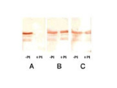Mouse Monoclonal Troponin I Type 3 (cardiac) Antibody